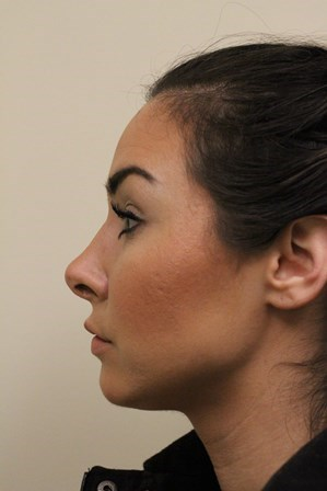Portland Rhinoplasty After - 1 Year Post Op