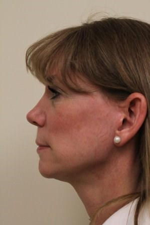 Portland Facelift Left View After - 4 Months Post Op