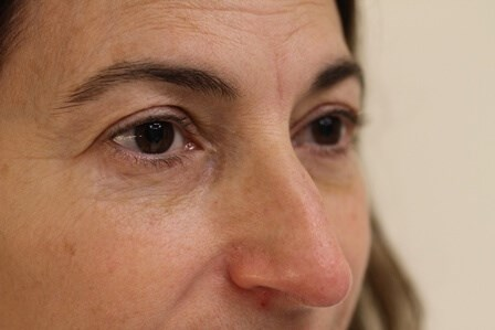 Blepharoplasty Portland Before