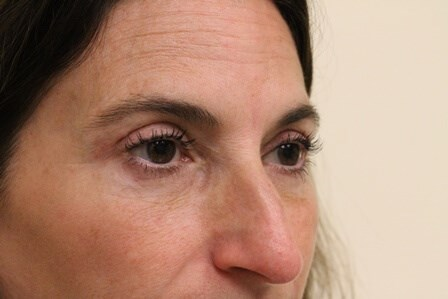 Blepharoplasty Portland After - 3 Months Post Op