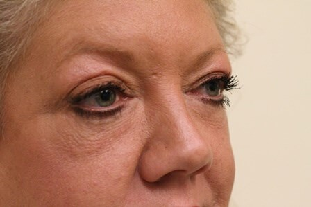 Blepharoplasty Portland After - 1 Year Post Op