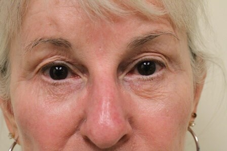 Portland Facelift Eye View Before