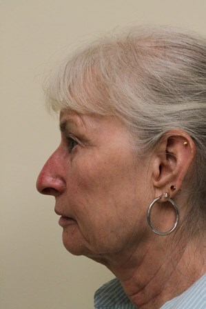 Portland Facelift Profile View Before