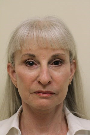 Portland Facelift Front View After - 5 Months Post Op