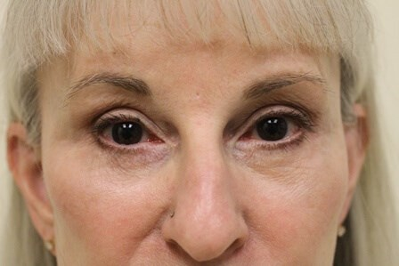 Portland Facelift Eye View After - 5 Months Post Op
