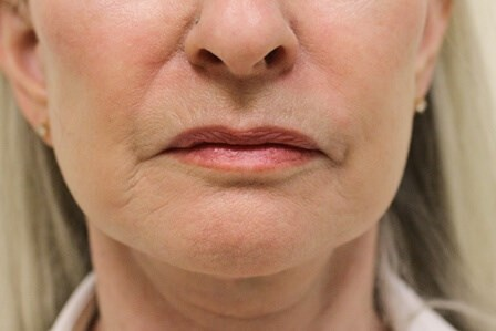 Portland Facelift Jowl View After - 5 Months Post Op