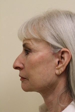 Portland Facelift Profile View After - 5 Months Post Op