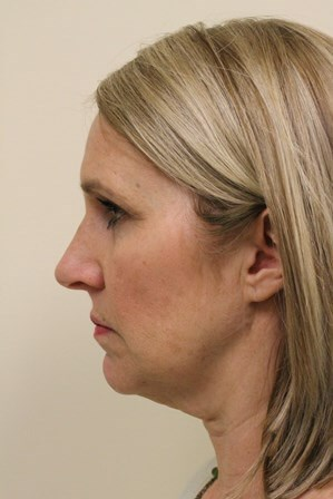 Portland Facelift/Browlift Before