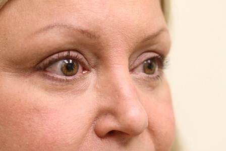Portland Blepharoplasty After-6 Months Post Op