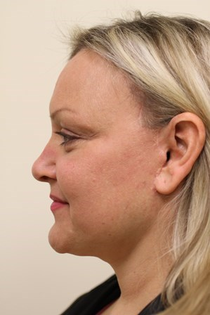 Portland Facelift After-6 Months Post Op