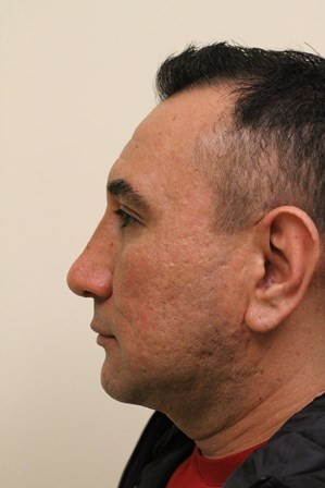 Portland Rhinoplasty After - 4 Months Post Op