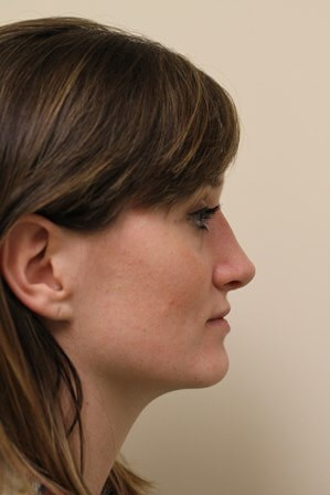 Portand Revision Rhinoplasty After - 2 Months Post Op