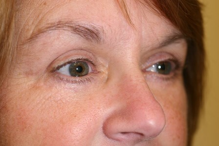 Portland Blepharoplasty After - 7 Months Post Op