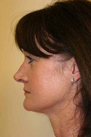 Portand Revision Rhinoplasty Before