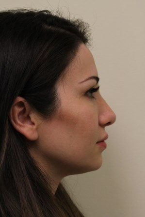 Portland Rhinoplasty After-6 Months Post Op