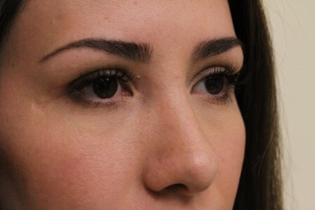 Portland Rhinoplasty After