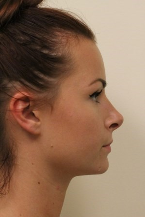 Portland Rhinoplasty After - 7 Months Post Op
