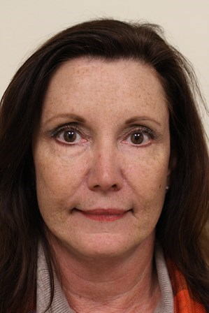 Portland Facelift After- 1 Year Post Op