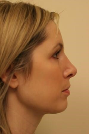 Portland Rhinoplasty After - 5 Months Post Op