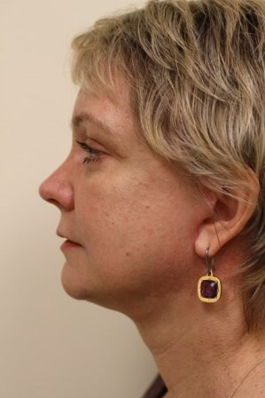 Portland Facelift After - 2 Months Post Op