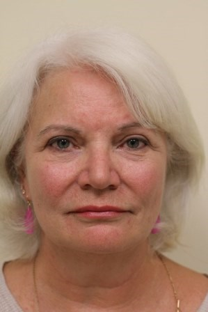 Portland Facelift, Forehead Lift and Lower Blepharoplasty