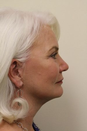 Portland Facelift After - 5 Months Post Op