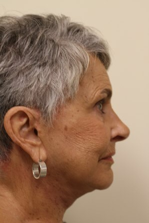 Portland Facelift After - Post Op 4 Months