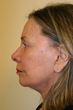Portland Facelift After - 6 Week Post Op