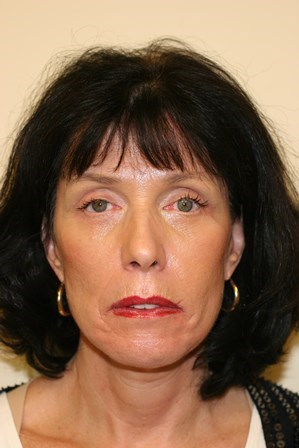 Portland Facelift After - 4 Month Post Op
