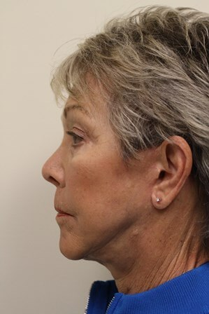 Portland Facelift After - 3 Months Post Op