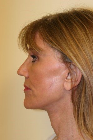 Portland Facelift and browlift After - 2 Months Post Op