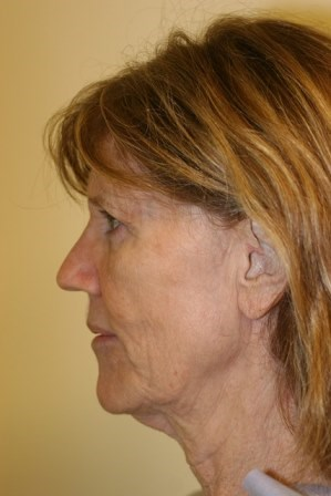 Portland Facelift and browlift Before