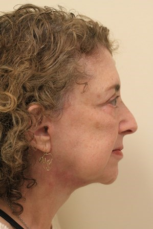 Portland Facelift After- 4 Month Post Op
