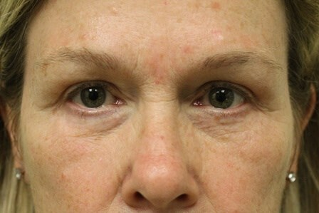 Portland Blepharoplasty After -  1 Year Post Op