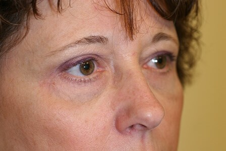 Portland Blepharoplasty After - 3 Month Post Op