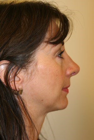 Portland Revision Rhinoplasty After - 6 Month Post Op