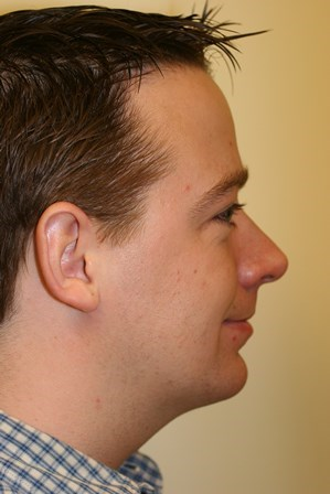 Portland Chin Augmentation After - 4 Month Post Op