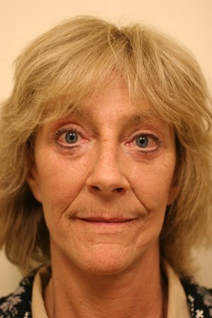 Portland Facelift After - 3 Month Post Op