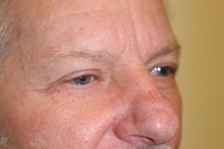Portland Blepharoplasty After - 5 Month Post Op