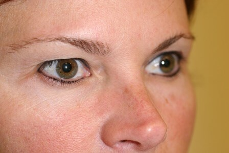 Portland Blepharoplasty Before