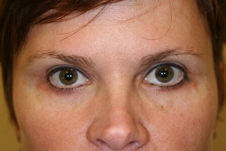 Portland Blepharoplasty After - 2 Month Post Op