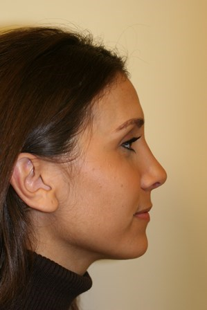 Portland Rhinoplasty After - 4 Month Post Op