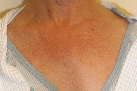 Portland Laser Resurfacing Before
