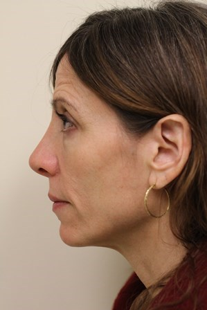 Portland Revision Rhinoplasty After - 7 Month Post Op