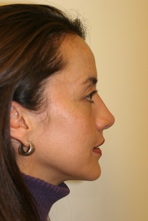 Portland Rhinoplasty After - 9 Months Post Op