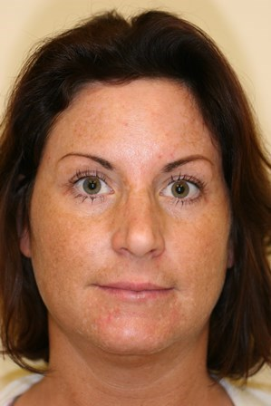 Portland Blepharoplasty After - 4 Months Post Op