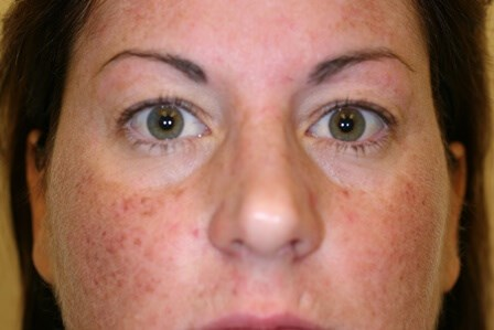 Porltand Blepharoplasty Before