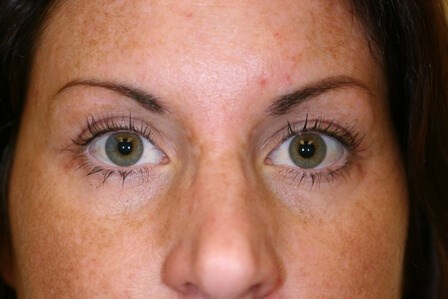 Porltand Blepharoplasty After - 4 Months Post Op