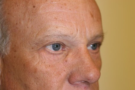 Portland Blepharoplasty After - 10 Month Post Op