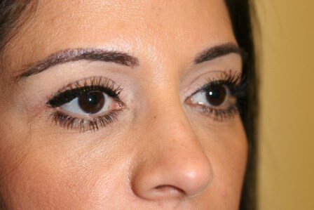 Portland Blepharoplasty After - 1 Month Post Op